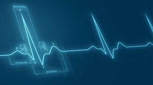 Cardiac pulse